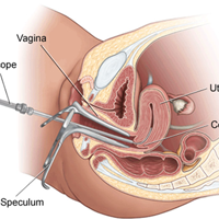 Hysteroscopic Polypectomy